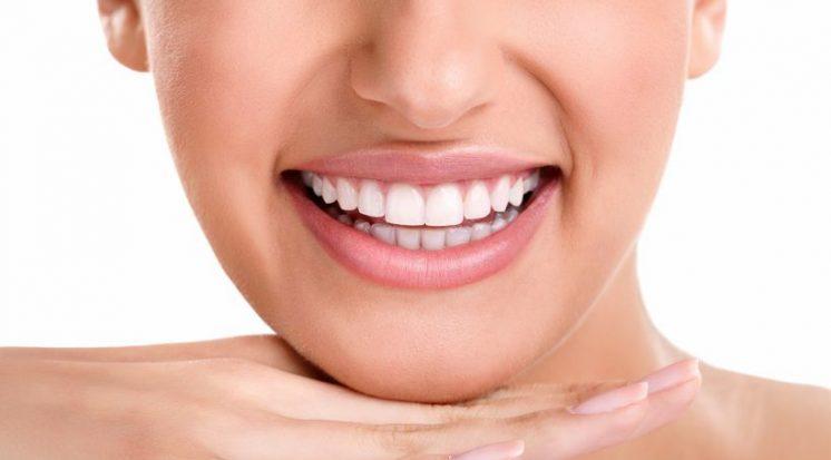 Conheca Os Tipos De Clareamento Dental Expodonto Odontologi