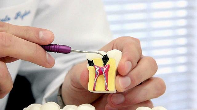 endodontia-pagina
