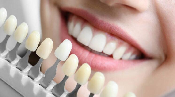 faceta-ou-lente-de-contato-dental