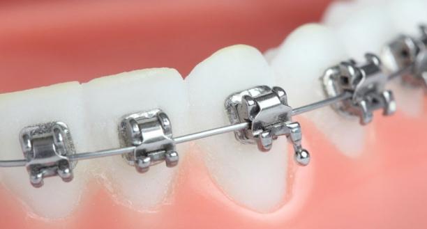 Aparelho autoligado-ortodontia