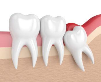 282485-duvidas-sobre-o-dente-do-siso-solucionamos-as-x-principais-perguntas