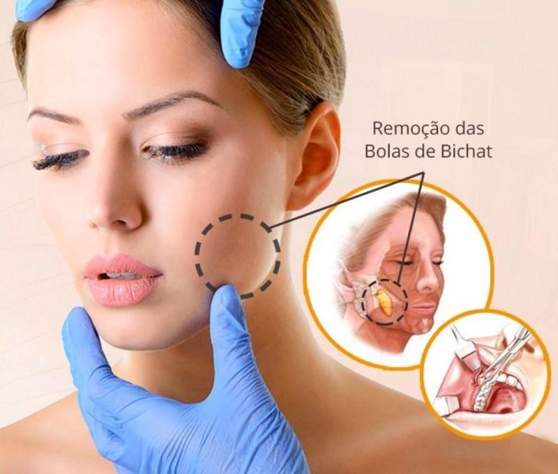 Bichectomia, apresenta ótimo resultado e satisfação de pacientes