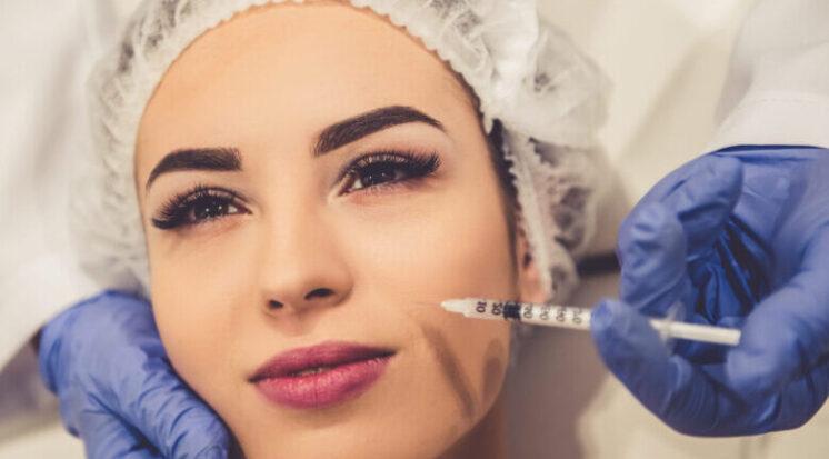 Botox no rosto: onde aplicar