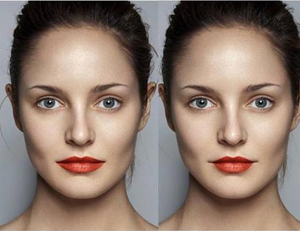 liplifting: conheça o procedimento que remodela os lábios