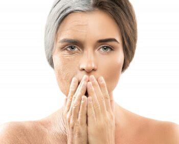 rugas: como tratar com botox