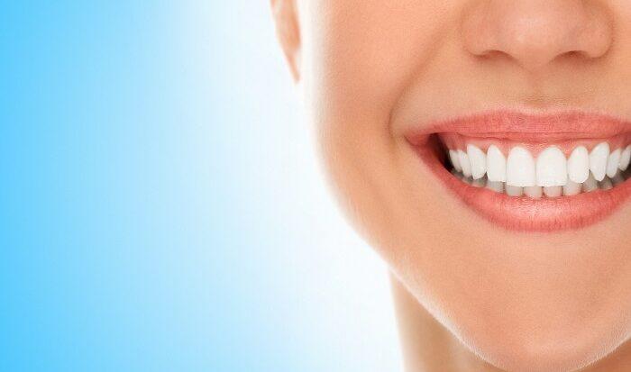 Sorriso Gengival: veja como o botox corrige o problema